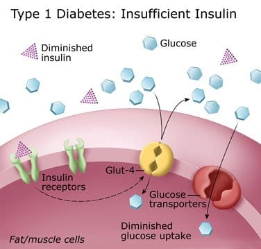 Long Term Effects Of Badly Managed Diabetes