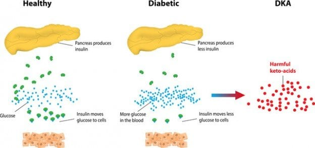 understanding keytones and diabetes