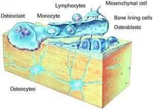 bone cells and diabetes