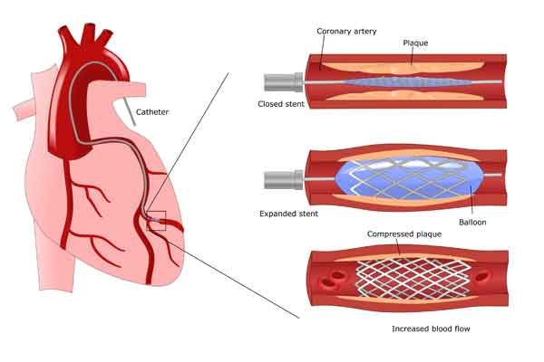coronary heart disease study - chd